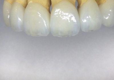 implantserwis04