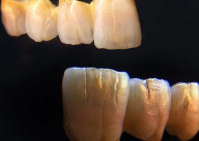 implantserwis07
