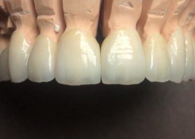 implantserwis11