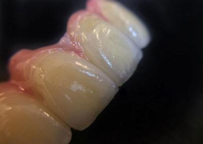 implantserwis12