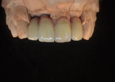 implantserwis13
