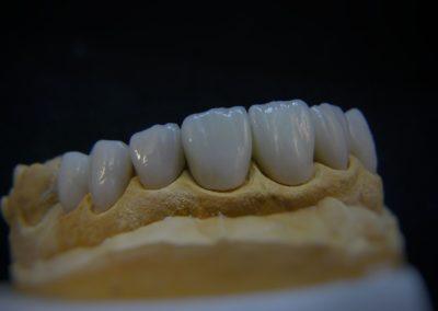 implantserwis14