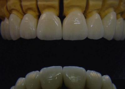 implantserwis15