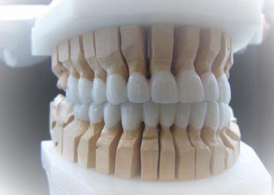 implantserwis22