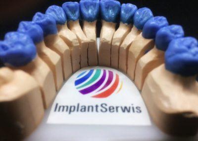 implantserwis24