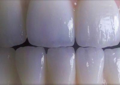 implantserwis28