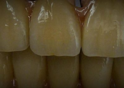 implantserwis29