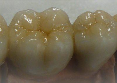 implantserwis30