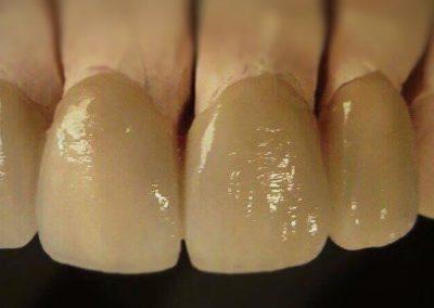 implantserwis35