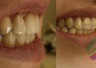 implantserwis36