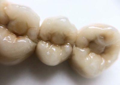 implantserwis39