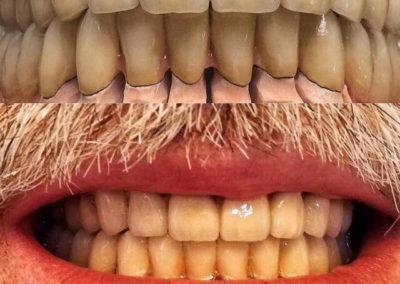 implantserwis41